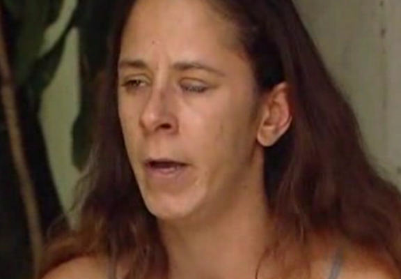 Floridian Woman Glues Eyes Shut After Eye Drop Mix up UNILAD eyedrop web5