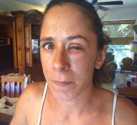 Floridian Woman Glues Eyes Shut After Eye Drop Mix up UNILAD flori15