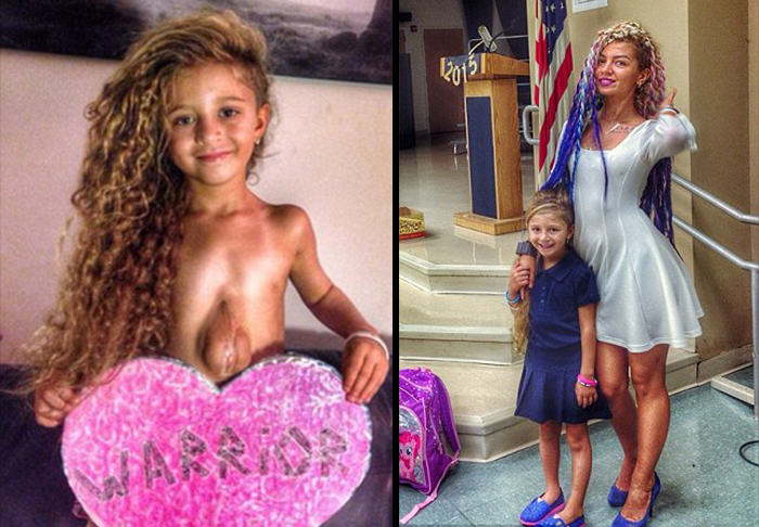 Meet The Six Year Old Girl Born With Her Heart Outside Her Chest UNILAD heart girl WEB 263590