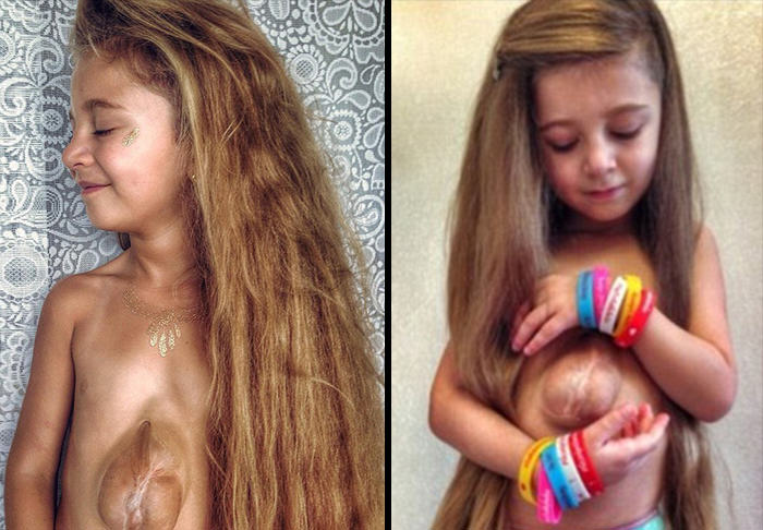 Meet The Six Year Old Girl Born With Her Heart Outside Her Chest UNILAD heart girl WEB11056