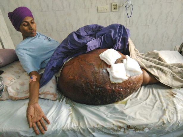Man Has Worlds Largest Tumour Removed In Ground Breaking Surgery UNILAD massive tumour 199233