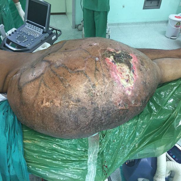 Man Has Worlds Largest Tumour Removed In Ground Breaking Surgery UNILAD massive tumour 242933