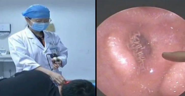NOPE: Video Shows Mans Ear Infested With Dozens Of Fly Larvae UNILAD nope larvae 608648726