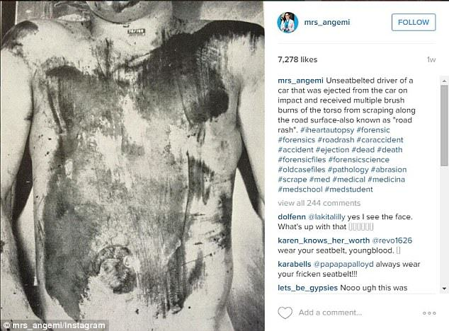 A Pathologist Is Posting Gruesome Photos Of The Dead On Instagram UNILAD path581138