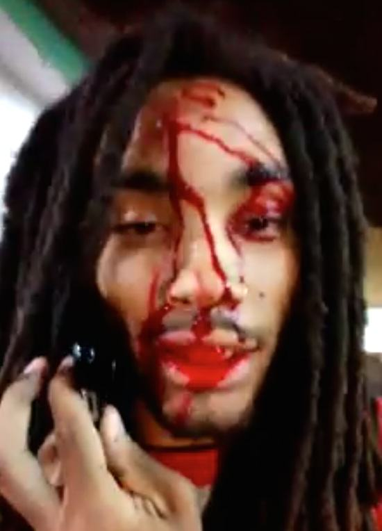 Rapper Shot In Head With AK 47, Makes This Video Before Going To Hospital UNILAD rapper11