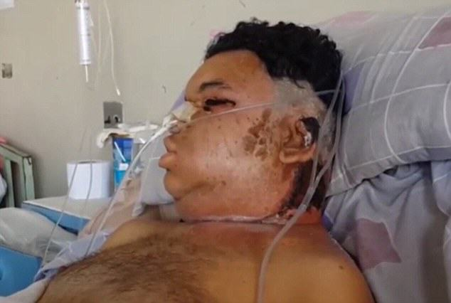 Man Left Fighting For Life After Being Bitten By Spider In Peru UNILAD spiderperu14