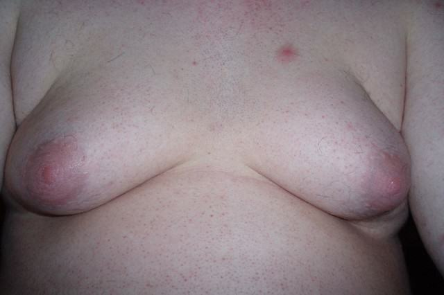 The Warning Signs That Someone May Be Abusing Steroids 800px Gynecomastia 001 640x426