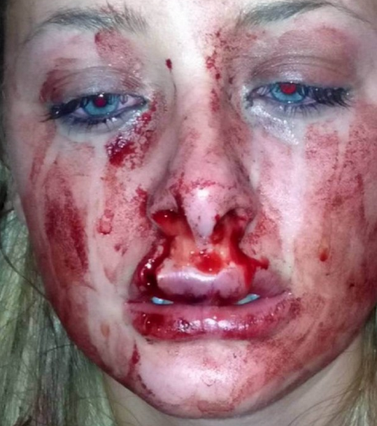 Disfigured Victim Of Domestic Violence Wins Beauty Pageant And Modelling Contract Screen Shot 2015 11 22 at 18.20.231