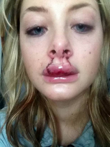 Disfigured Victim Of Domestic Violence Wins Beauty Pageant And Modelling Contract Screen Shot 2015 11 22 at 18.37.58