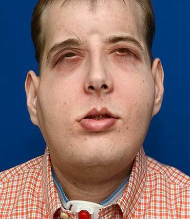 Disfigured Firefighter Undergoes Most Extensive Face Transplant Ever UNILAD New face45220 370x426