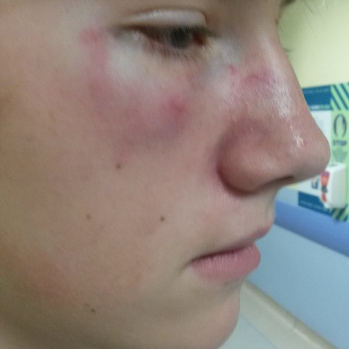 Brutal Video Of Boy, 12, Being Battered By Bullies Goes Viral UNILAD RPY JOSH COOPER 1911007