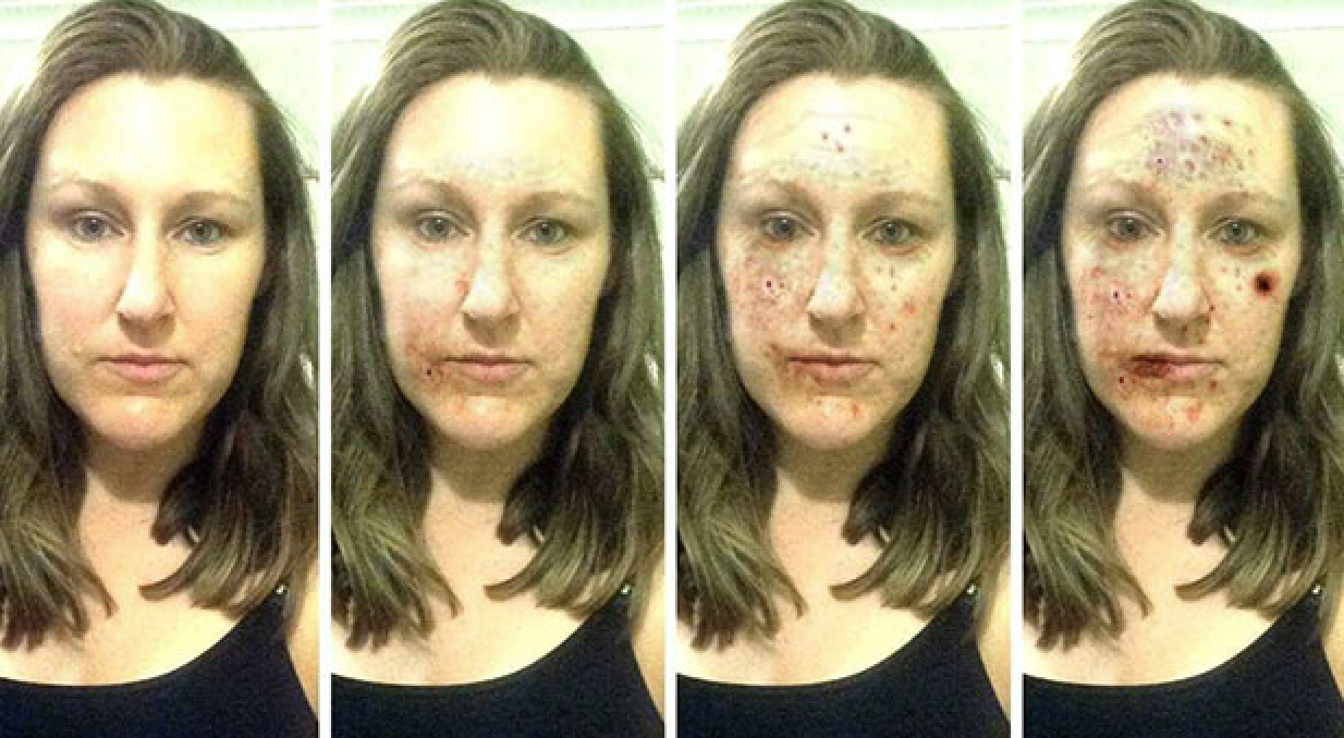 New App Shows Devastating Effect Of Crystal Meth On Your Face UNILAD Screen Shot 2015 11 10 at 6.17.27 PM21865