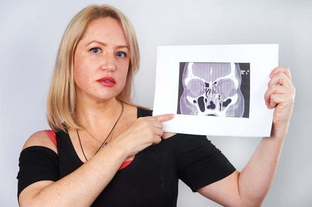 This Woman Had A Flesh Eating Disease So Horrific She Sneezed Out Her Own Septum UNILAD flesh eating 444853