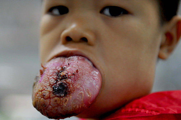 Boy, 4, With Tongue Three Times Normal Size Awaits Life Changing Operation tongue tumor 1