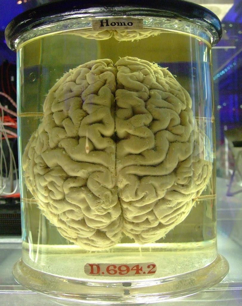 Man Stole Human Brains And Sold Them On eBay tumblr