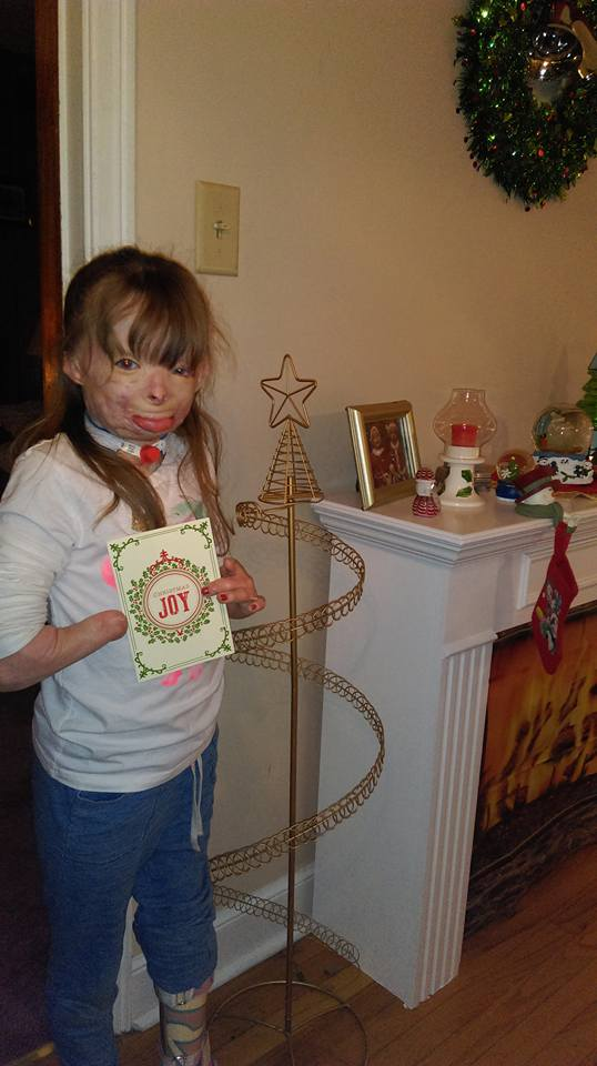 Brave Little Girl Who Lost Family In Arson Attack Gets Her Christmas Wish 12316210 934388736630013 9154673854484281696 n