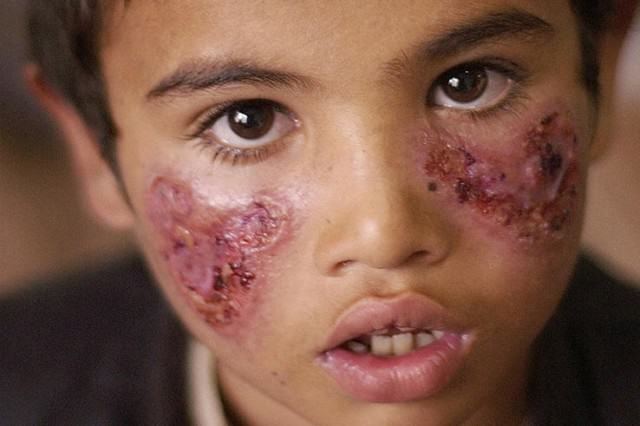 ISIS Slaughter Of Innocent People Spreading Flesh Eating Disease Featured flesh eating 640x426