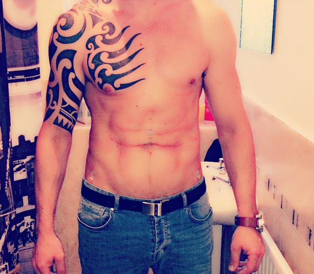 Lad Travels Across Europe To Have Permanent Six Pack Surgery Lee Coupland 1