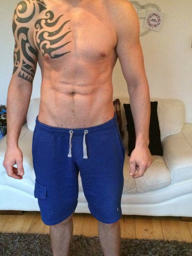 Lad Travels Across Europe To Have Permanent Six Pack Surgery Lee Coupland 4