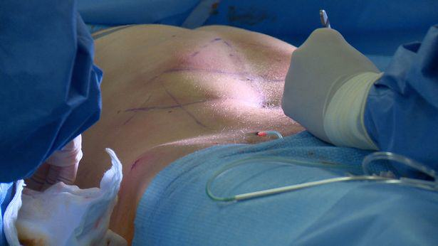 Lad Travels Across Europe To Have Permanent Six Pack Surgery Lee Coupland 5