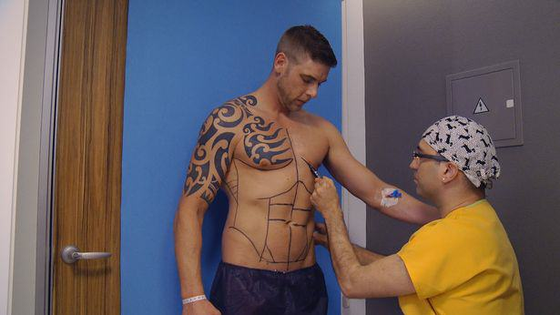Lad Travels Across Europe To Have Permanent Six Pack Surgery Lee Coupland