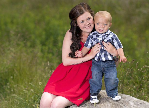 Toddler Born With His Brain Growing Into His Nose PAY Ollie Trezise 1