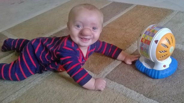 Toddler Born With His Brain Growing Into His Nose PAY Ollie Trezise 2