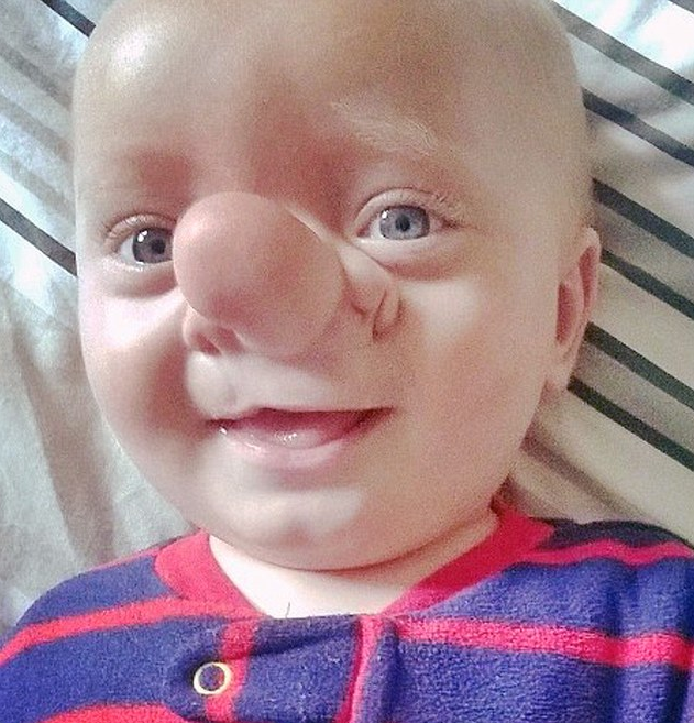 Toddler Born With His Brain Growing Into His Nose Screen Shot 2015 12 14 at 12.50.34