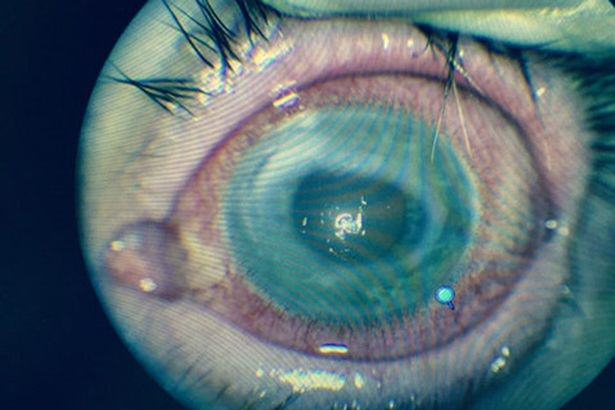 Man Blind In One Eye After Contact Lens Parasite Burrows Into His Eyeball Stephen Souter 1 2