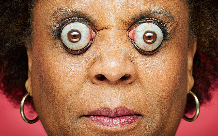 These People Have The Most Bizarre Natural And Unnatural Traits You Can Imagine eyepop1