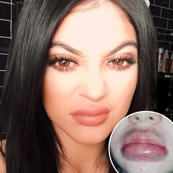 Five Times The Kardashians Outdid Even Themselves This Year kylie lips