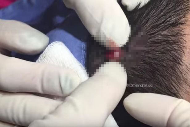 NOPE: Watch This Guy Have A Huge Horn Like Cyst Cut Out Of His Head pimple1