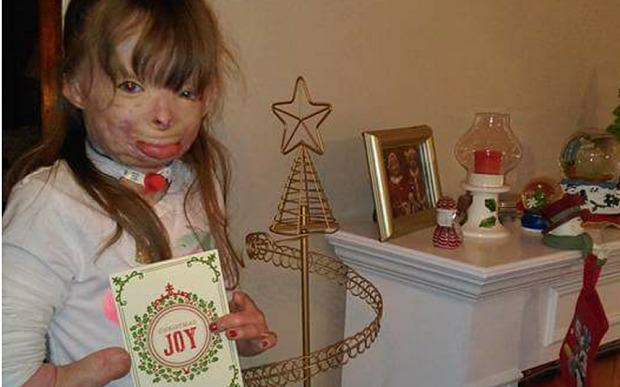 Girl Who Lost Family In Arson Attack Just Wants Cards For Christmas saf3