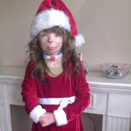Girl Who Lost Family In Arson Attack Just Wants Cards For Christmas saf4