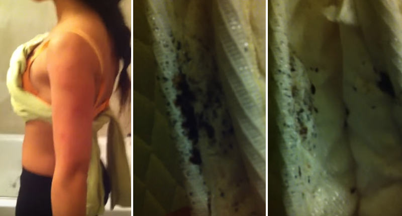 Wonderful NOPE: Guy Films Nightmare Bed Bug Infestation At New York Hotel FaceThumb 13
