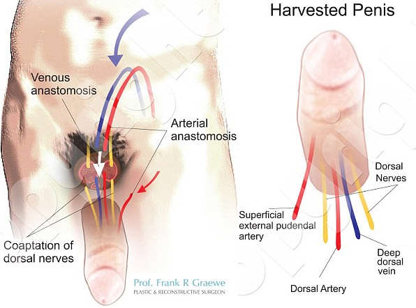 Wounded War Veteran To Receive First Penis Transplant In The U.S. South Africa SU Penis Transplant Diagram 2 Wide