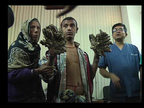 Man Who Turned Into Tree Set For Life Changing Surgery Treeman 2