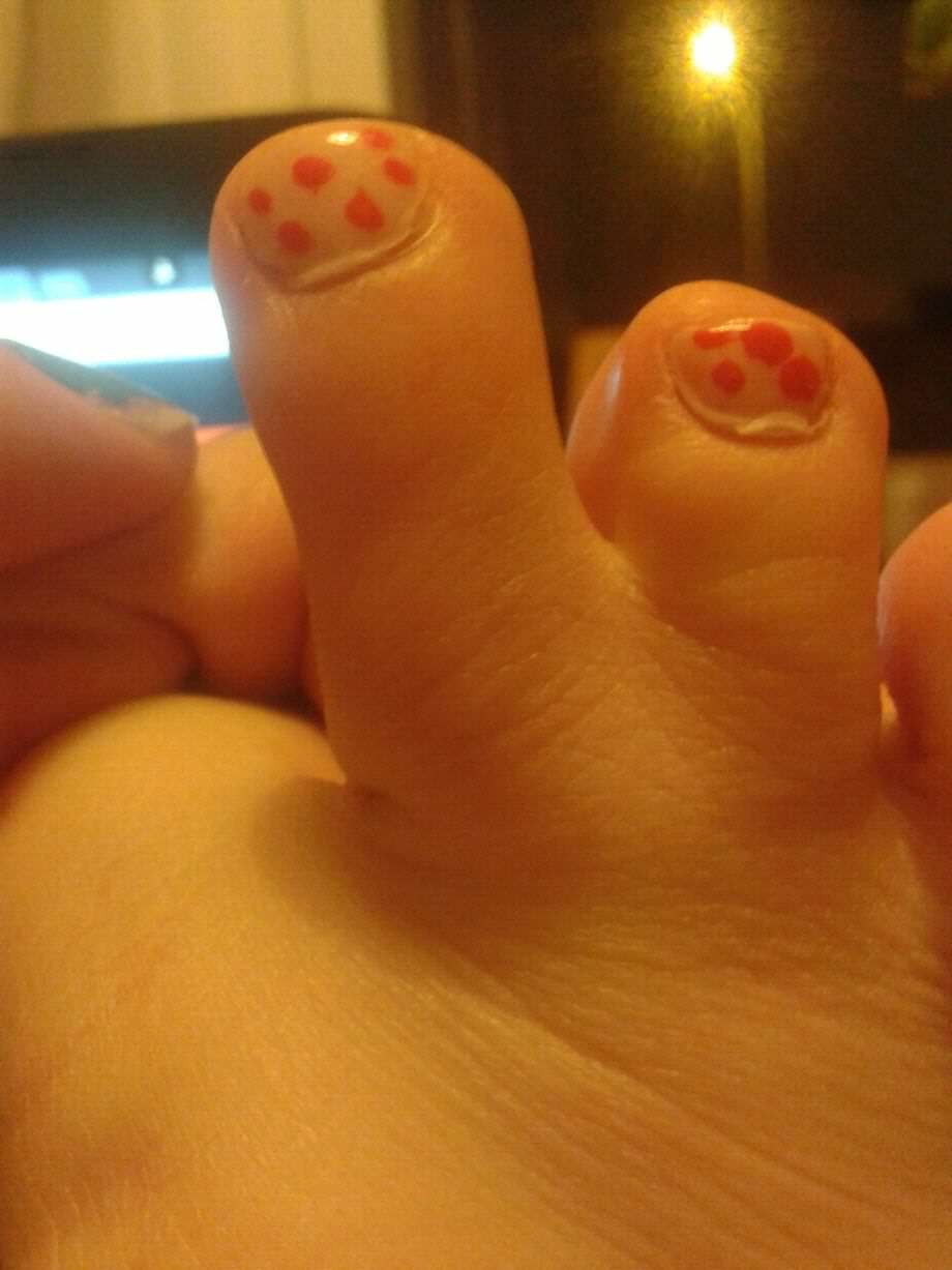 Girl Freaked Out When She Stumbled Across Pictures Of Her Feet Online foot 3