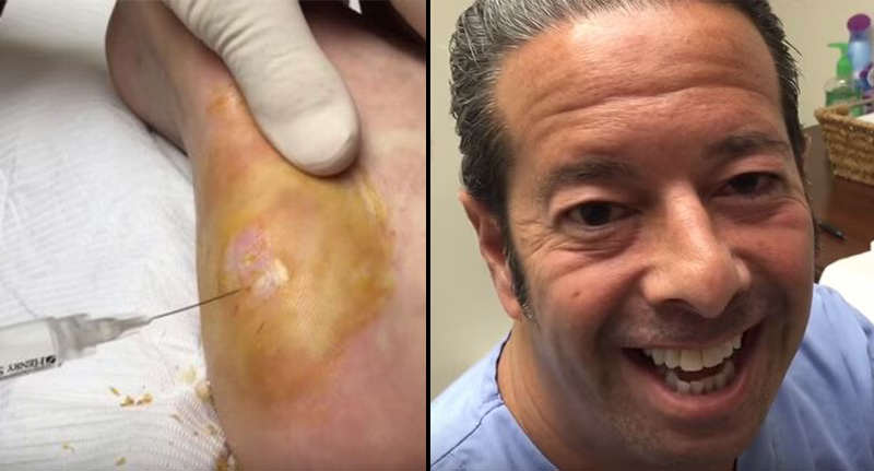 Cluster Of Warts Removed From Mans Heel In Absolute NOPE Fest wart video FB