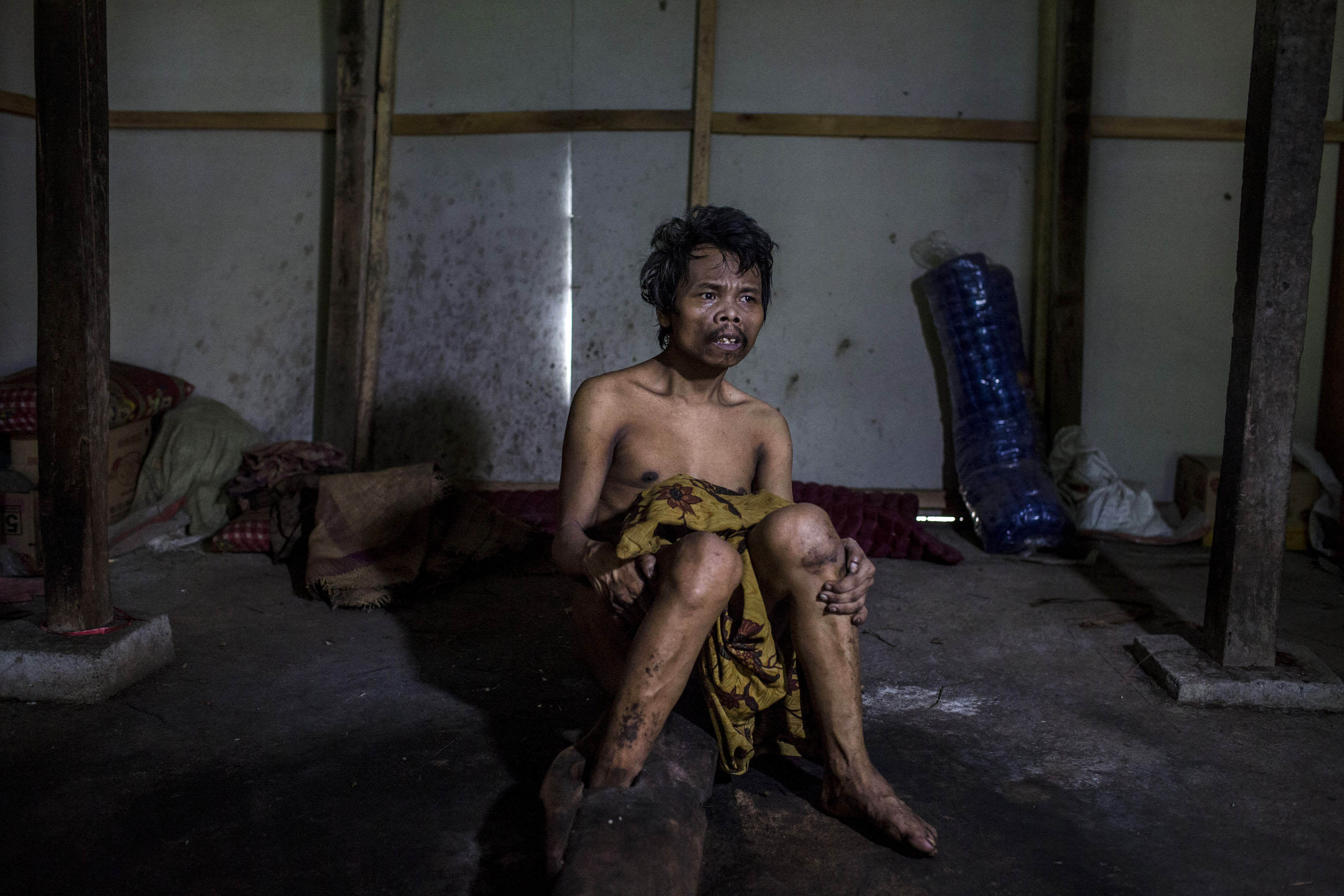 Mentally Ill Indonesians Living Under Shackles In Down Syndrome Village