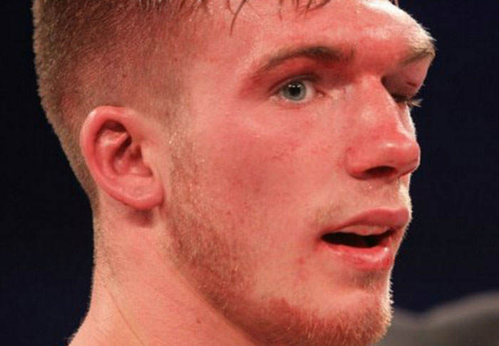 Boxer Nick Blackwell May Be Brought Out Of Coma Today blackwell1