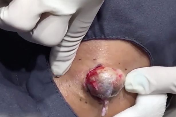 NOPE: Dr Pimple Popper Removes Massive Egg Sized Cyst In Best Video Yet drpopper2