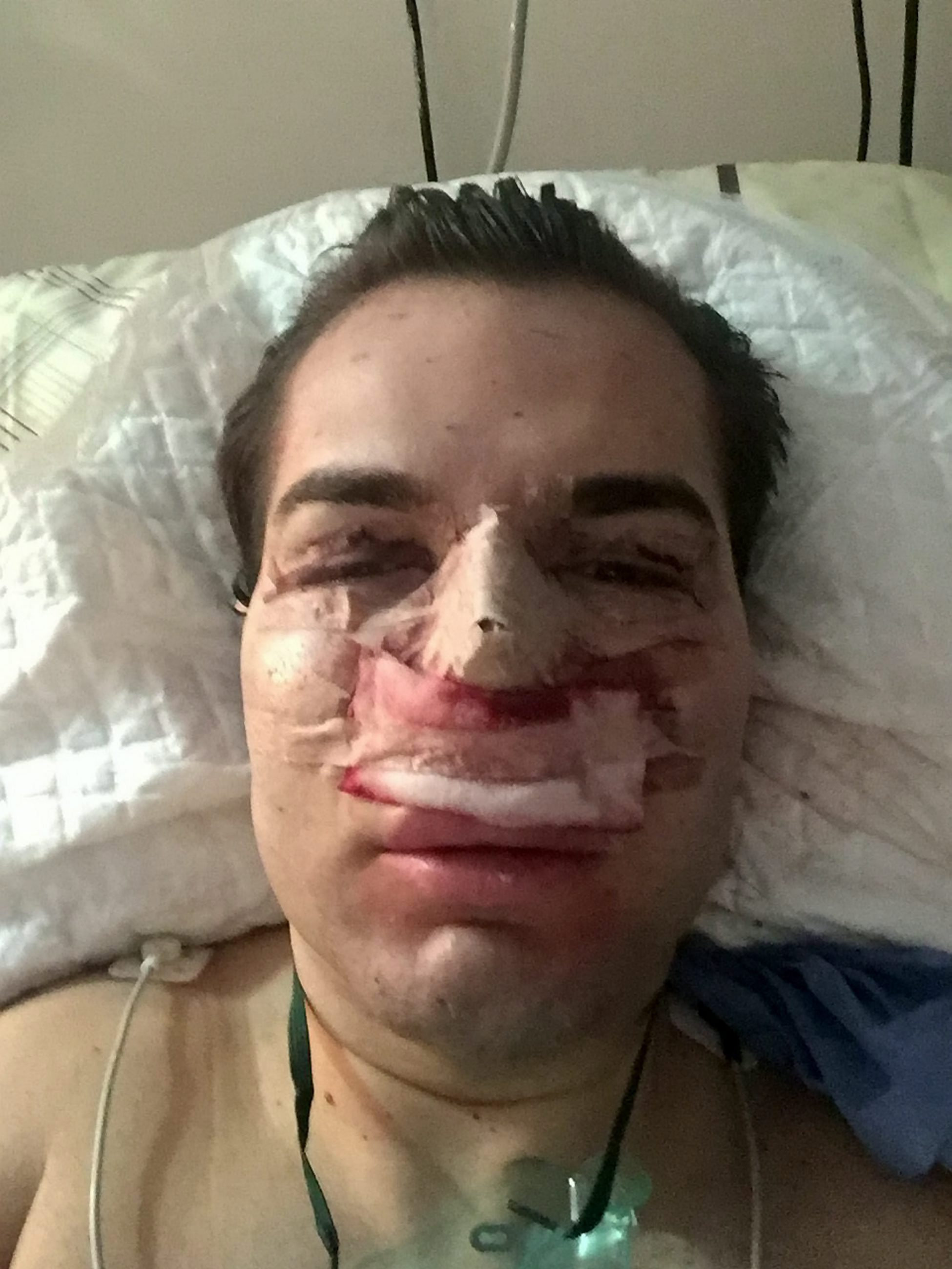 Plastic Surgery Addict Admitted To Hospital With Rotting Nose nose66
