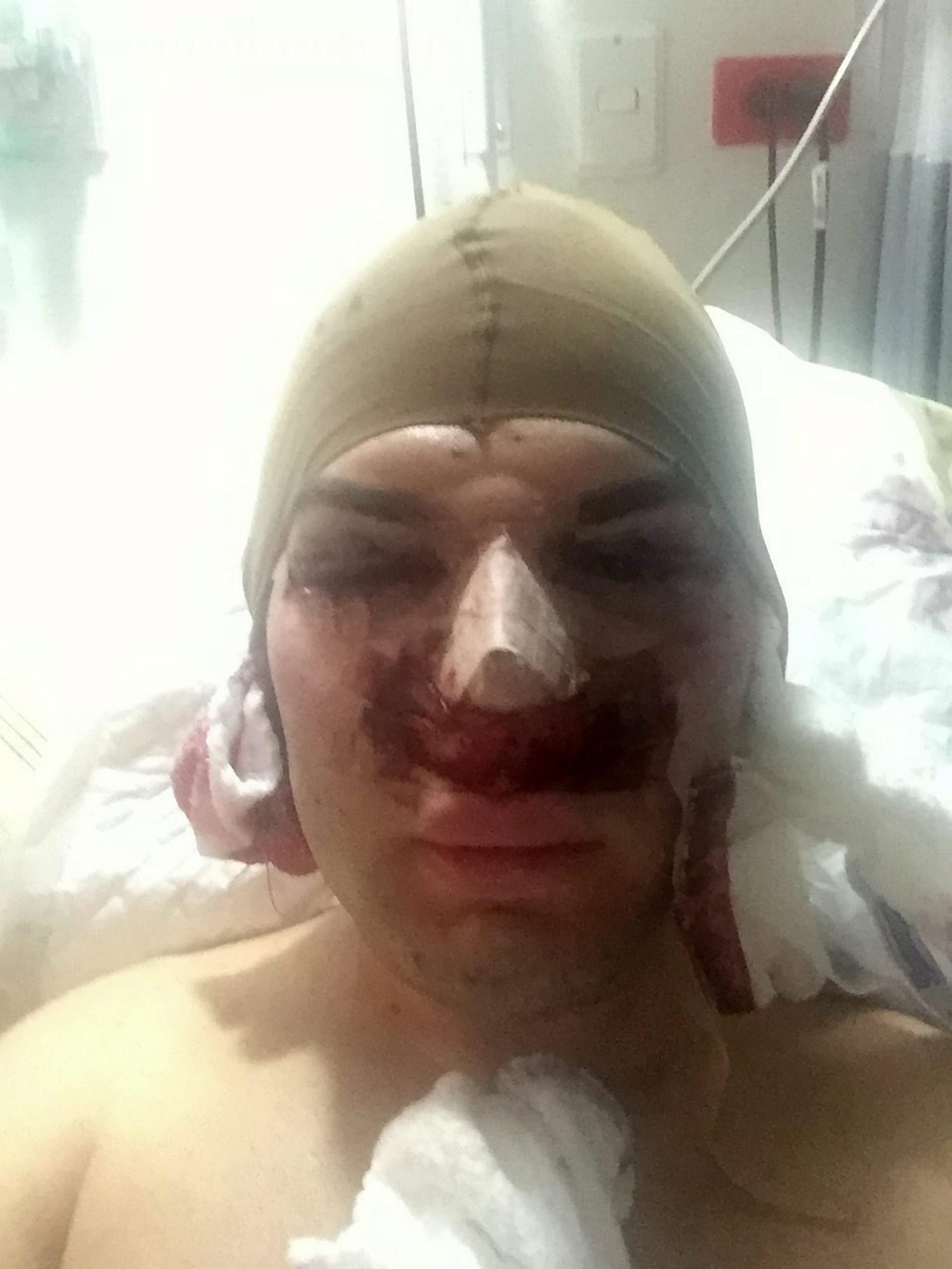 Plastic Surgery Addict Admitted To Hospital With Rotting Nose nose99
