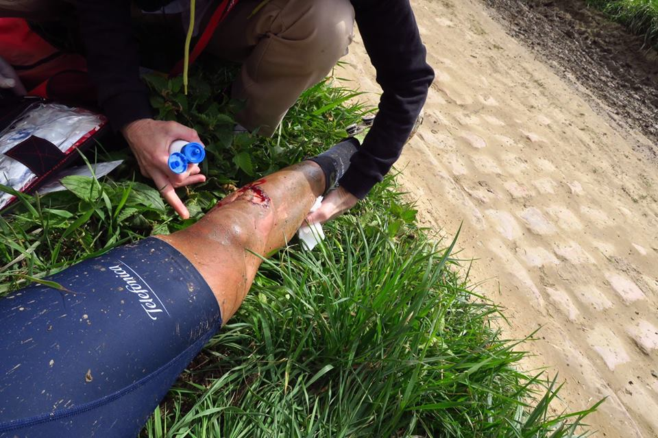 NOPE: Cyclist Cuts Leg Through To Bone In Gruesome Accident shin3