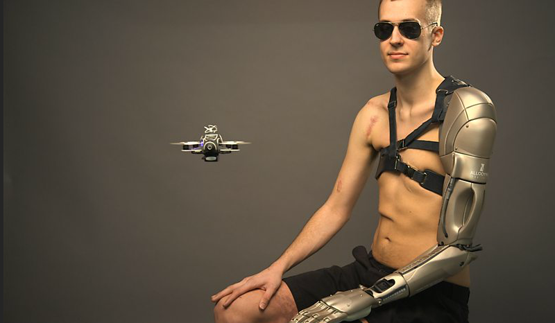 Meet The Metal Gear Man And His Incredible Bionic Arm 146358766335