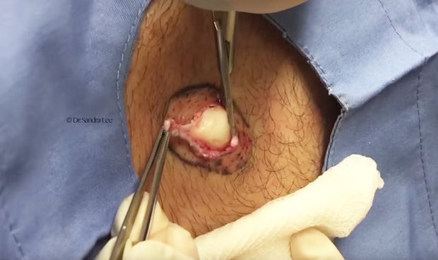This Latest Dr Pimple Popper Will Put You Off Mozzarella Forever Pimple 540975