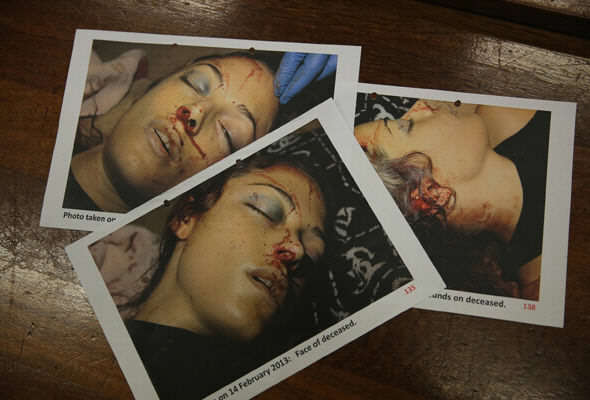 Graphic Photos Of Reeva Steenkamps Body Her Father Wants World To See reeva 1