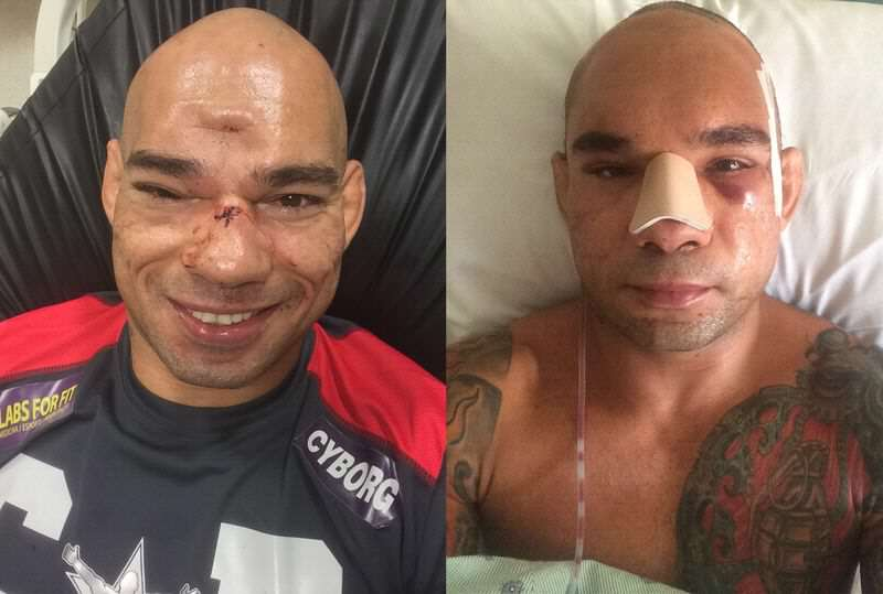 MMA Fighter Reveals Monster Scar Following Horrific Skull Fracture cyborg before after.0