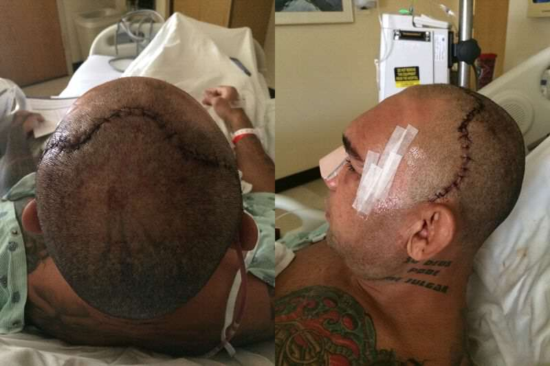 MMA Fighter Reveals Monster Scar Following Horrific Skull Fracture cyborg before after3.0